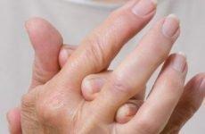 Опухли, запалилися і болять суглоби пальців на руках: причини, лікування, народні засоби