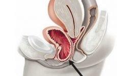 Опущення сечового міхура у чоловіків та жінок: причини, симптоми, лікування, вправи