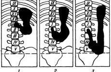 Опущення шлунка (гастроптоз): що це таке, симптоми, причини, лікування