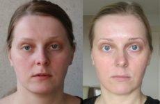 Особливості проведення фейсбілдінга для носа і губ: вправи, принципи, методика
