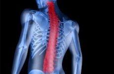 Остеохондропатия хребта шийного і грудного відділу у дітей і дорослих: код МКХ-10, ознаки деформації апофизов, симптоми, лікування