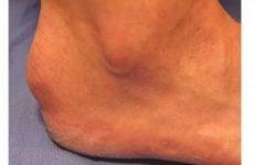 Остеохондропатия п'яткової кістки у дітей: код за МКХ-10, лікування горбистої апофіз, рентген