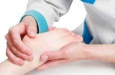 Остеохондропатия у дітей: МКБ-10, класифікація, лікування, стадії, етіологія і патогенез, причини