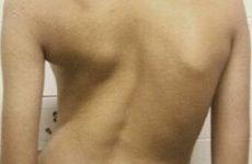 Остеохондроз 4 ступінь шийного та поперекового відділу хребта: лікування