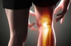 Остеохондроз колінного суглоба: симптоми, лікування народними засобами