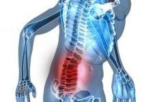 Остеохондроз крижового відділу хребта: симптоми, лікування, ознаки у жінок