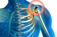 Остеохондроз плечового суглоба: симптоми, лікування, вправи