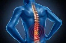 Остеохондроз попереково-крижового відділу хребта: симптоми, ступеня, код за МКХ-10, ознаки
