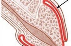 Гострий гнійний баланопостит у чоловіків та хлопчиків: причини, симптоми, діагностика, лікування
