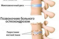 Гострий остеохондроз шийного та поперекового відділу хребта: лікування, як зняти симптоми