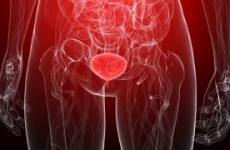 Гострий уретрит у чоловіків і жінок: причини, симптоми, діагностика, лікування
