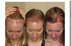 Пересадка волосся: ціни, відгуки, фото до і після, методи, особливості