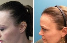 Пересадка волосся HFE: ціна, післяопераційний період, відгуки, ускладнення, техніка операції