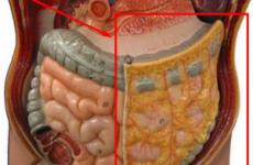 Перитоніт черевної порожнини: що це за хвороба, код за МКХ-10, причини, симптоми, лікування