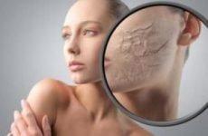 Пілінг для чутливої шкіри: показання, протипоказання, техніка, ускладнення, побічні ефекти, відгуки, ціна