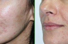 Пілінг для проблемної шкіри: види, ціна, показання, протипоказання, популярні рецепти