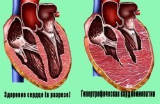 Пивне серце – загроза для життя людини