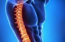 Чому хрумтить хребет при повороті: в грудному або шийному відділі, в попереку, між лопатками