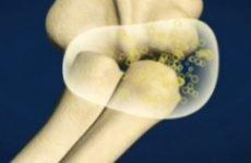 Чому хрустять суглоби по всьому тілу: тазостегновий, колінний суглоб, пальці, щелепу, що робити