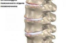 Чому виникає біль у спині, попереку і куприку, коли довго сидиш за комп'ютером: правильне положення, причини