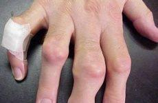 Подагра: що це за хвороба, фото, код за МКХ-10, діагностика, аналізи, причини і ознаки