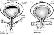 Підтікання сечі у чоловіків і жінок: причини, діагностика, лікування народними засобами і препаратами, вправи