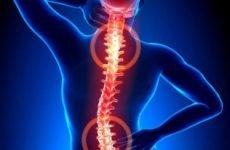 Полісегментарною остеохондроз шийного, грудного, попереково-крижового відділу 1, 2 ступеня: лікування, симптоми, код за МКХ-10
