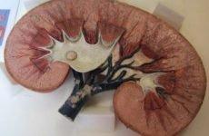Ураження нирок при подагрі: код за МКХ-10, симптоми нефропатії, лікування, дієта