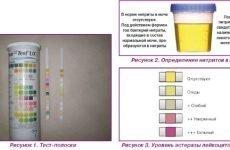 Підвищені нітрити в сечі у дітей, чоловіків, жінок та вагітних: причини і лікування
