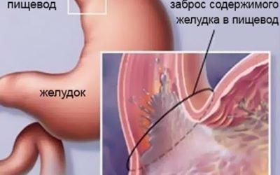 Причини постійної печії і відрижки, лікування ліками і народними засобами