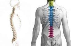 Ознаки і симптоми грижі поперекового, грудного та шийного відділу хребта у чоловіків і жінок