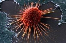 Рак матки: перші ознаки та симптоми у жінок, тривалість життя, фото, стадії і причини