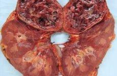 Рак нирки: симптоми та ознаки у чоловіків, прогнози після видалення, скільки живуть з 4 стадією, лікування
