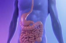 Рак тонкої кишки: симптоми на ранніх стадіях, ознаки у жінок, діагностика, лікування та прогноз