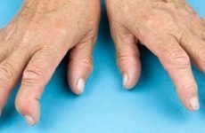 Ранні ознаки ревматоїдного артриту, симптоми…