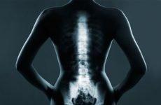 Поширений (великий) остеохондроз хребта: симптоми, лікування, код за МКХ-10, ЛФК