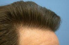 Реабілітація після пересадки волосся: фото, відновлення донорської зони, результати