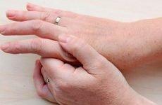 Ремісія псоріатичного артриту, лікування…
