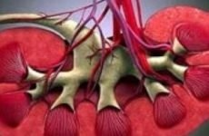 Ретроградна уретеропиелография: показання, підготовка, проведення, розшифровка результатів