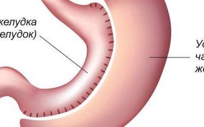 Резекція шлунка: ускладнення, протипоказання, реабілітація