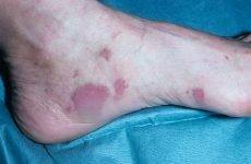 Саркома – що це за хвороба: симптоми, фото, причини, види, лікування та прогноз