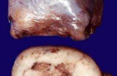 Семинома яєчка: симптоми і причини, види, стадії, лікування, прогноз, фото пухлини