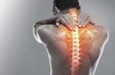 Шийний хондроз хребта: симптоми, ознаки, лікування в домашніх умовах