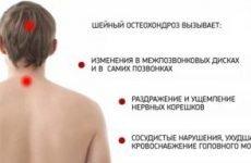 Сильний біль в правому або лівому плечі, а також в м'язах шиї і під лопаткою: причини, лікування, як позбутися