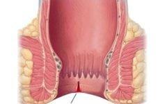 Симптоми анальної тріщини, лікування хвороби заднього проходу в домашніх умовах
