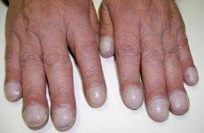 Симптоми біліарного цирозу печінки, лікування, тривалість життя