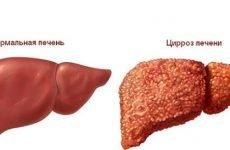 Симптоми і ознаки алкогольного цирозу печінки, лікування хвороби у чоловіків