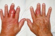 Симптоми подагри (подагричного артриту) у чоловіків і жінок: що це за хвороба, ознаки на руках і ногах, фото