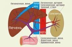 Синдром портальної гіпертензії: що це таке, симптоми, лікування