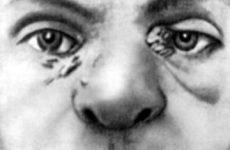 Склерома носа, верхніх дихальних шляхів, гортані: етіологія, симптоми